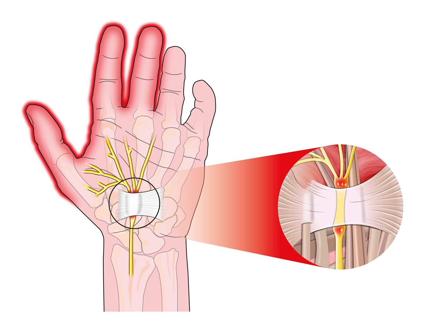 Massage for Carpal Tunnel Syndrome