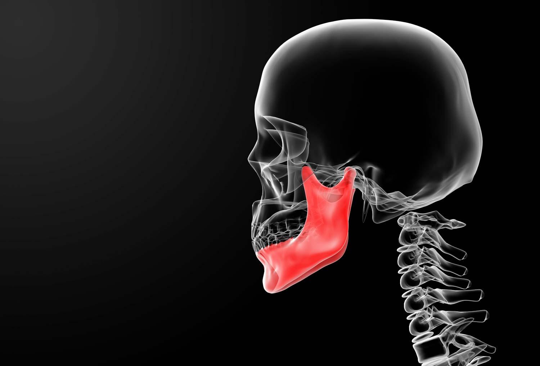 Temporomandibular Joint Syndrome skeletal image